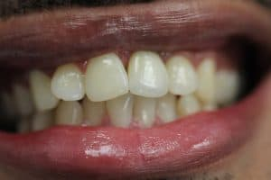 Dental implant crown on front tooth