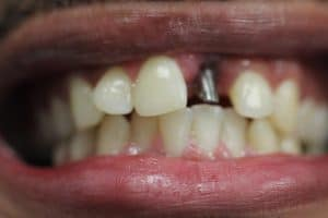 Dental implant front tooth
