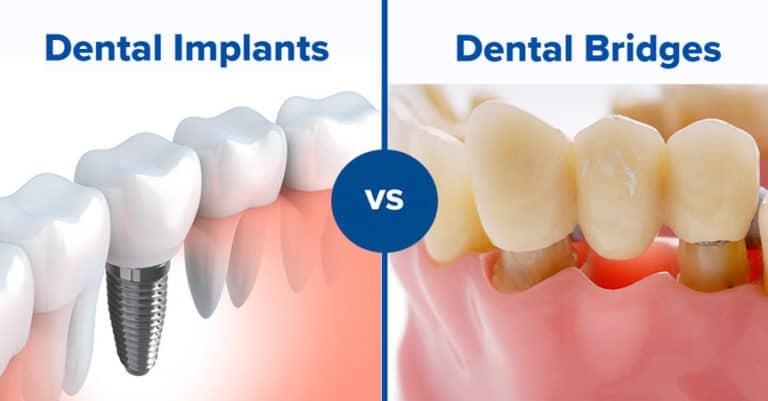 Dental Implant vs. Bridge