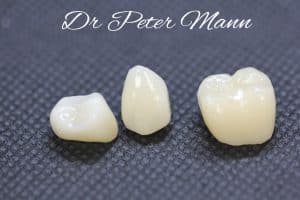 cerect crowns