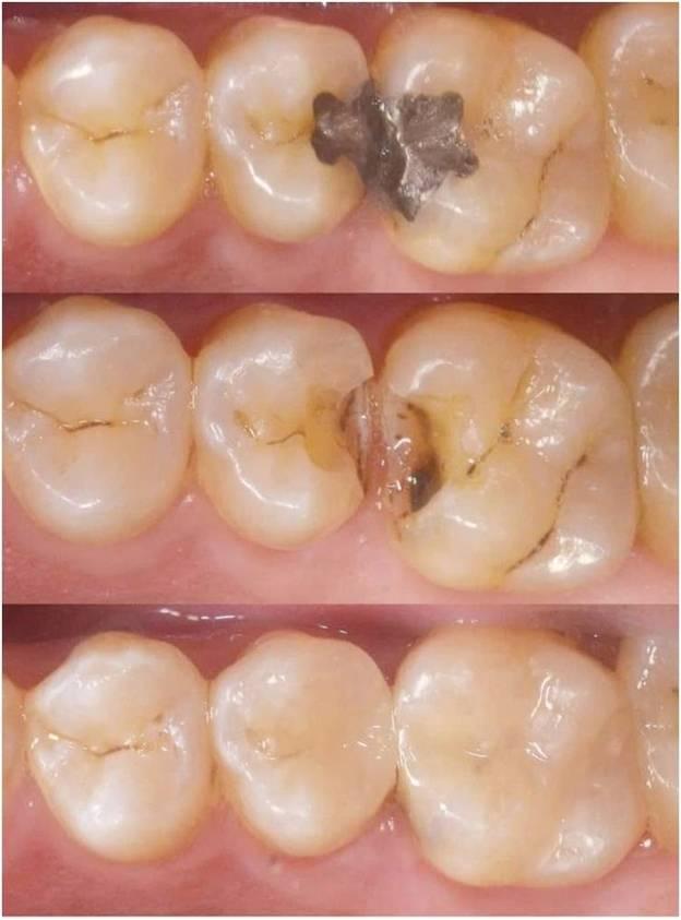 Holistic Dental filling