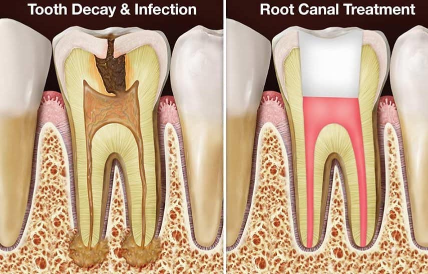Root-canal-NYC