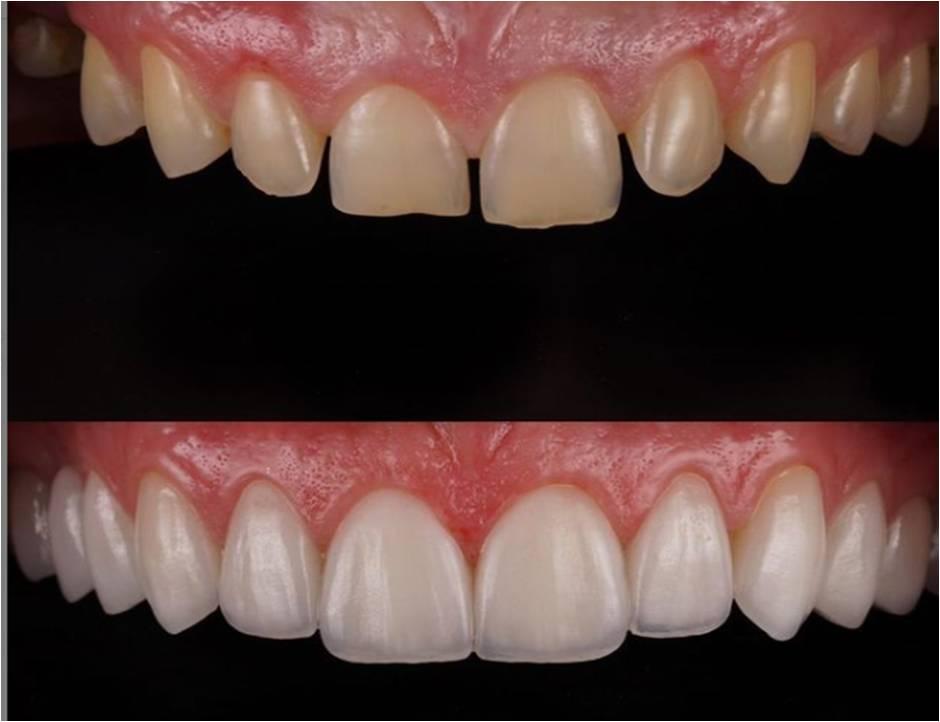 broken teeth repaired with vneers