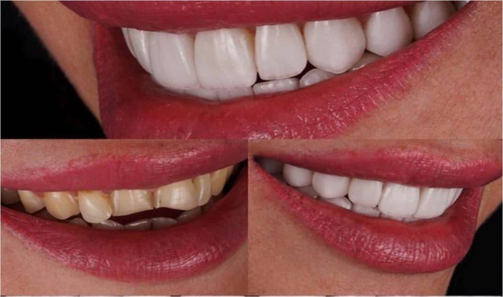 Porcelain Veneers repairing broken teeth