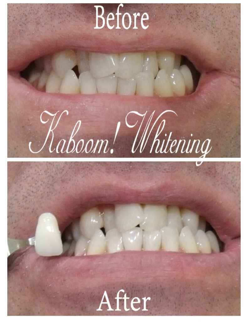 Teeth Whitening before and after photo