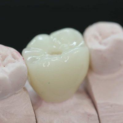 molar porcelain implant crown