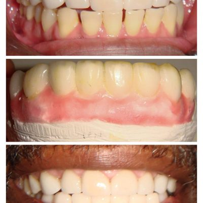 lower teeth porcelain veneers