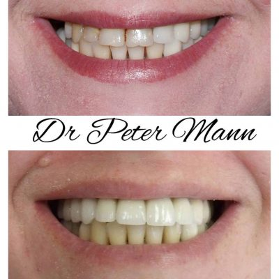 crowns and veneers before and after