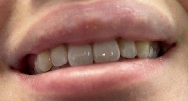 Emergency tooth repair with bonding
