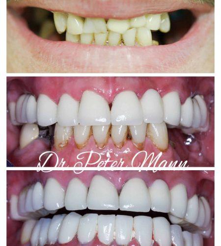 smile make over dentist