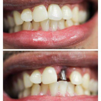 front teeth dental implants