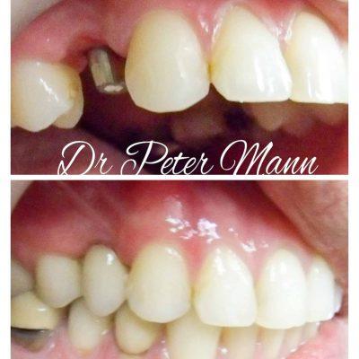 Premolar Dental Implant crown