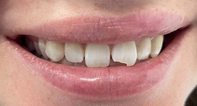 Dental Emergency - broken tooth