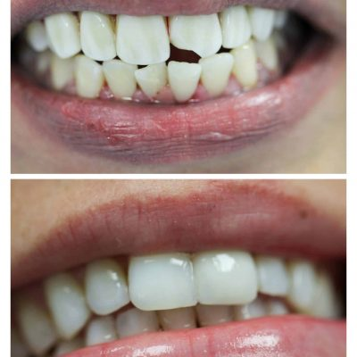 Chipped front tooth veneer